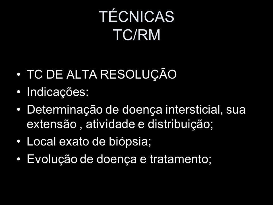 TÉCNICAS TC/RM TC DE ALTA RESOLUÇÃO Indicações: Determinação de doença intersticial, sua extensão, atividade e distribuição; Local exato de biópsia; E
