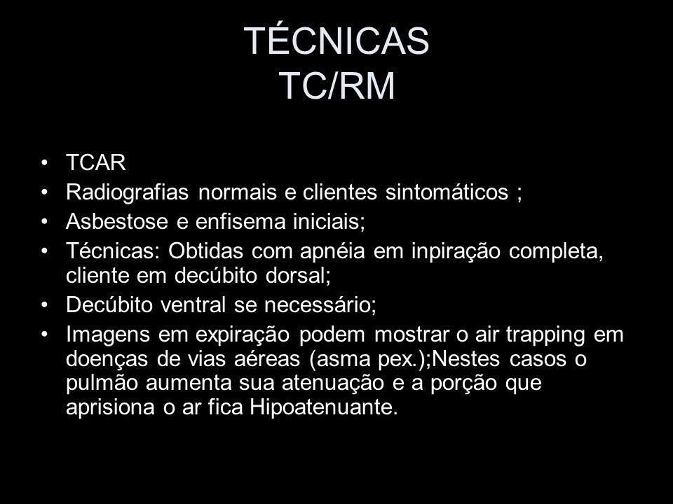 TÉCNICAS TC/RM TCAR Radiografias normais e clientes sintomáticos ; Asbestose e enfisema iniciais; Técnicas: Obtidas com apnéia em inpiração completa,