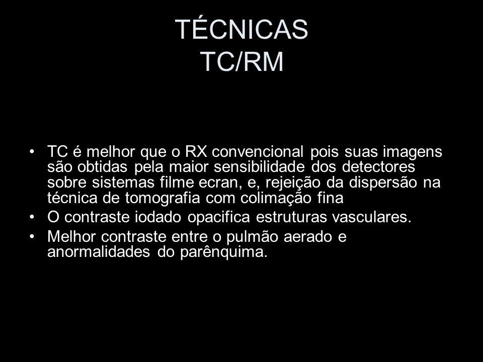 TÉCNICAS TC/RM Reformatação Bidimensional e Imagem Tridimensional Avaliação da origem de grandes massas Lesões adjacentes ao diafragma; Estudo da árvore traqueobrônquica; Colimação fina (1 a 3mm); Pitch1,0-1,5 Superposição de cortes helicoidais reconstruídos a 25-75% suprime o artefato de degrau.