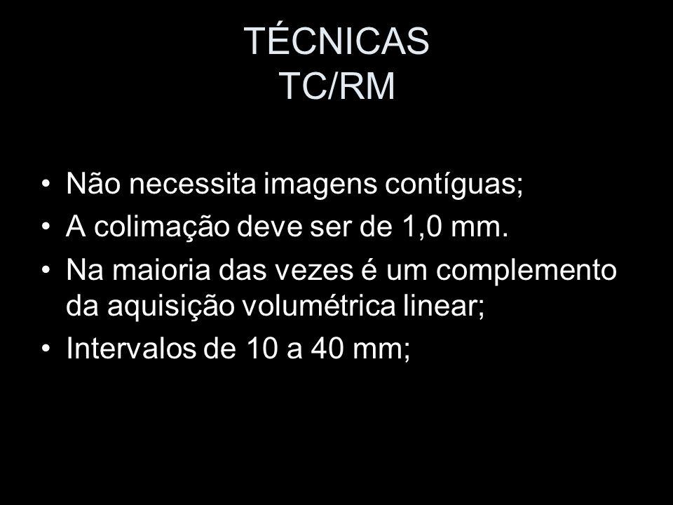TÉCNICAS TC/RM Não necessita imagens contíguas; A colimação deve ser de 1,0 mm. Na maioria das vezes é um complemento da aquisição volumétrica linear;