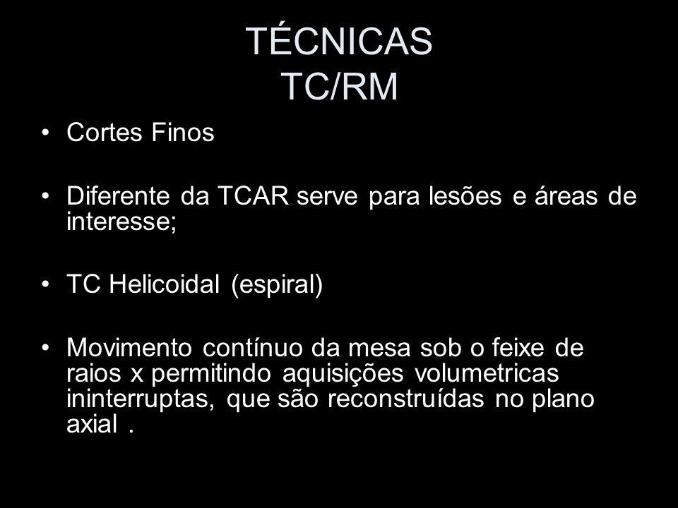 TÉCNICAS TC/RM Cortes Finos Diferente da TCAR serve para lesões e áreas de interesse; TC Helicoidal (espiral) Movimento contínuo da mesa sob o feixe d