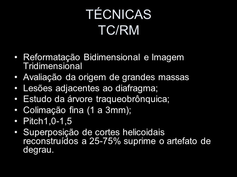 TÉCNICAS TC/RM Reformatação Bidimensional e Imagem Tridimensional Avaliação da origem de grandes massas Lesões adjacentes ao diafragma; Estudo da árvo