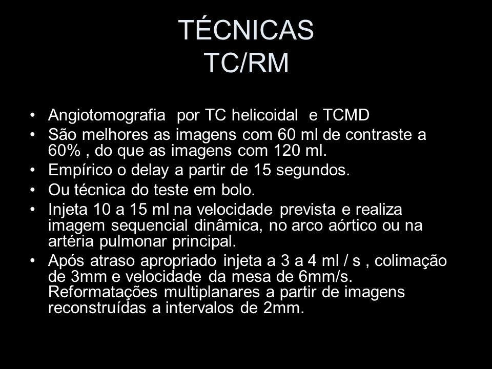 TÉCNICAS TC/RM Angiotomografia por TC helicoidal e TCMD São melhores as imagens com 60 ml de contraste a 60%, do que as imagens com 120 ml. Empírico o