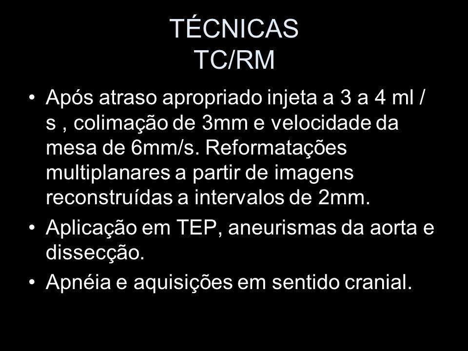TÉCNICAS TC/RM Após atraso apropriado injeta a 3 a 4 ml / s, colimação de 3mm e velocidade da mesa de 6mm/s. Reformatações multiplanares a partir de i
