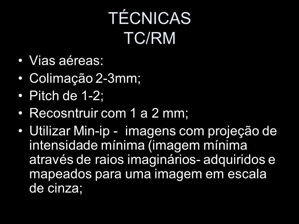TÉCNICAS TC/RM Vias aéreas: Colimação 2-3mm; Pitch de 1-2; Recosntruir com 1 a 2 mm; Utilizar Min-ip - imagens com projeção de intensidade mínima (ima