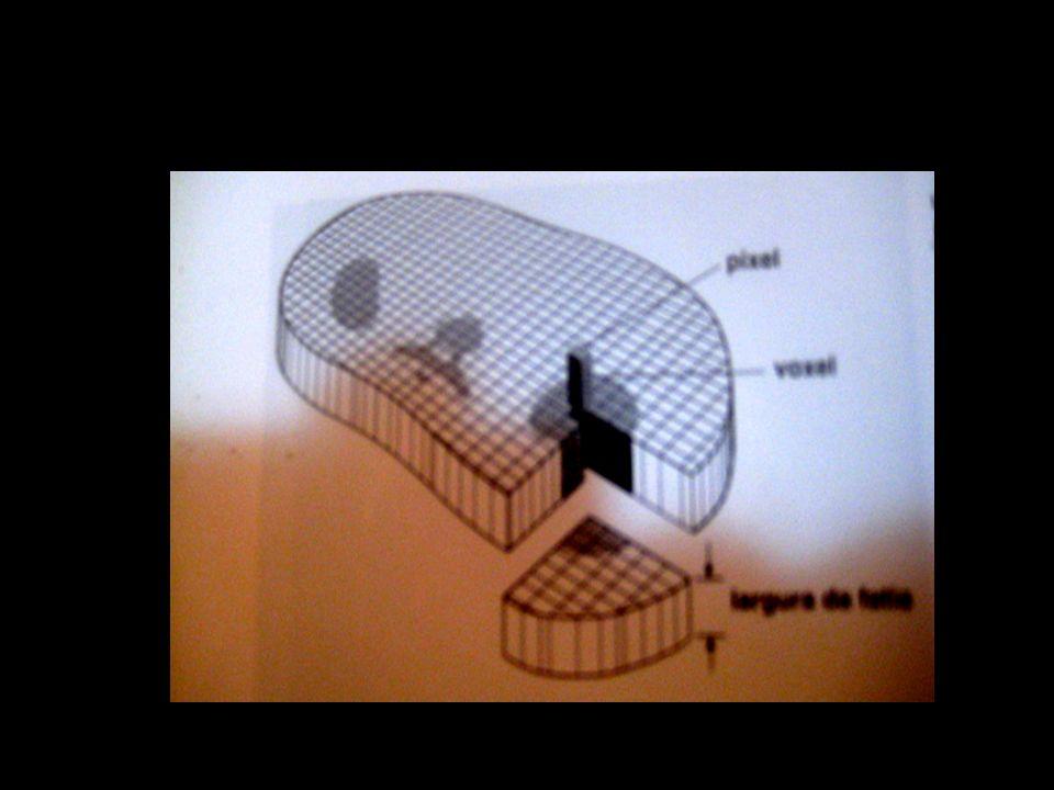 TÉCNICAS TC/RM As reformatações tridimensionais são realizadas em MIP (maximum intensity projection).