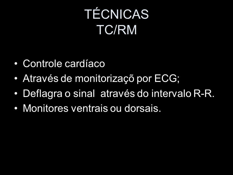 TÉCNICAS TC/RM Controle cardíaco Através de monitorizaçõ por ECG; Deflagra o sinal através do intervalo R-R. Monitores ventrais ou dorsais.