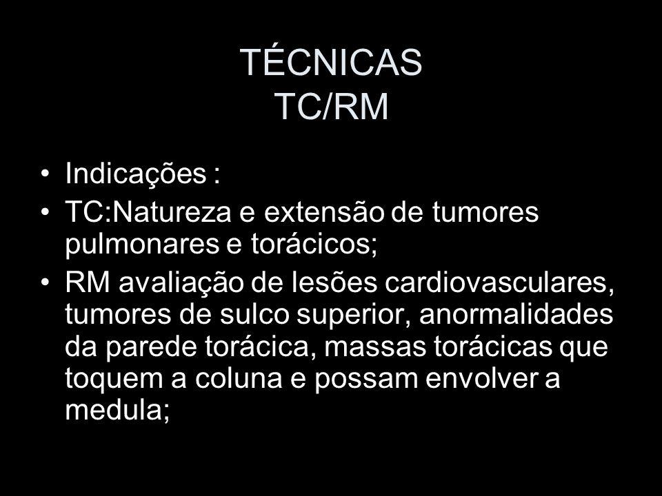 TÉCNICAS TC/RM A TC é mais indicada em casos de suspeita tumoral (pré e pós tratamento); A RM reconhecida pela capacidade de demonstrar fluxo sanguíneo e alto contraste entre as estruturas de partes moles (e o melhor: sem uso de radiação ionizante).