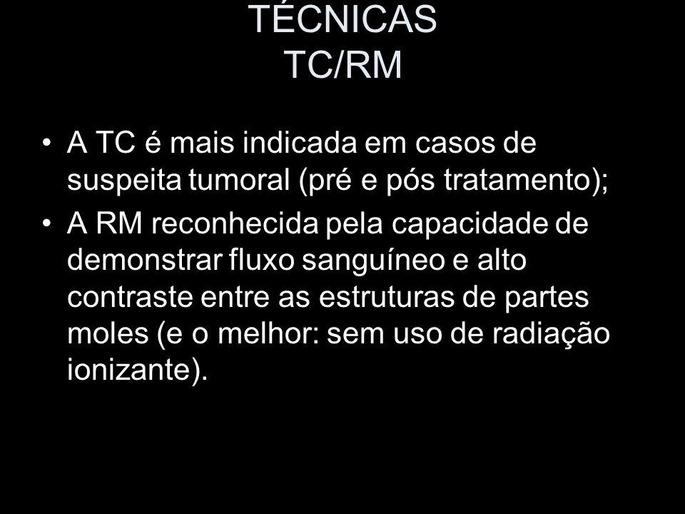 TÉCNICAS TC/RM A TC é mais indicada em casos de suspeita tumoral (pré e pós tratamento); A RM reconhecida pela capacidade de demonstrar fluxo sanguíne