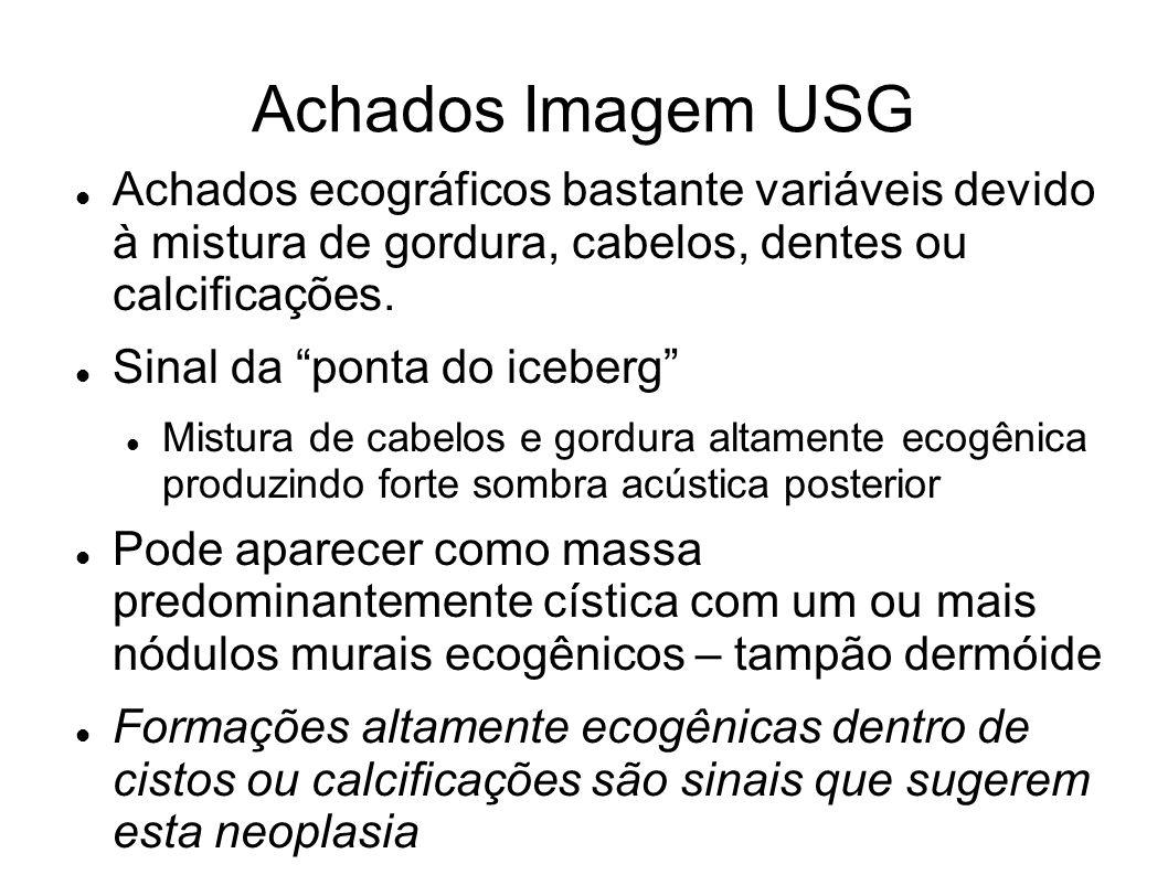 Achados Imagem USG Achados ecográficos bastante variáveis devido à mistura de gordura, cabelos, dentes ou calcificações. Sinal da ponta do iceberg Mis