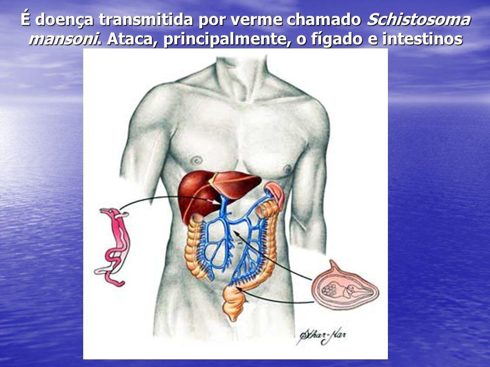 É doença transmitida por verme chamado Schistosoma mansoni. Ataca, principalmente, o fígado e intestinos