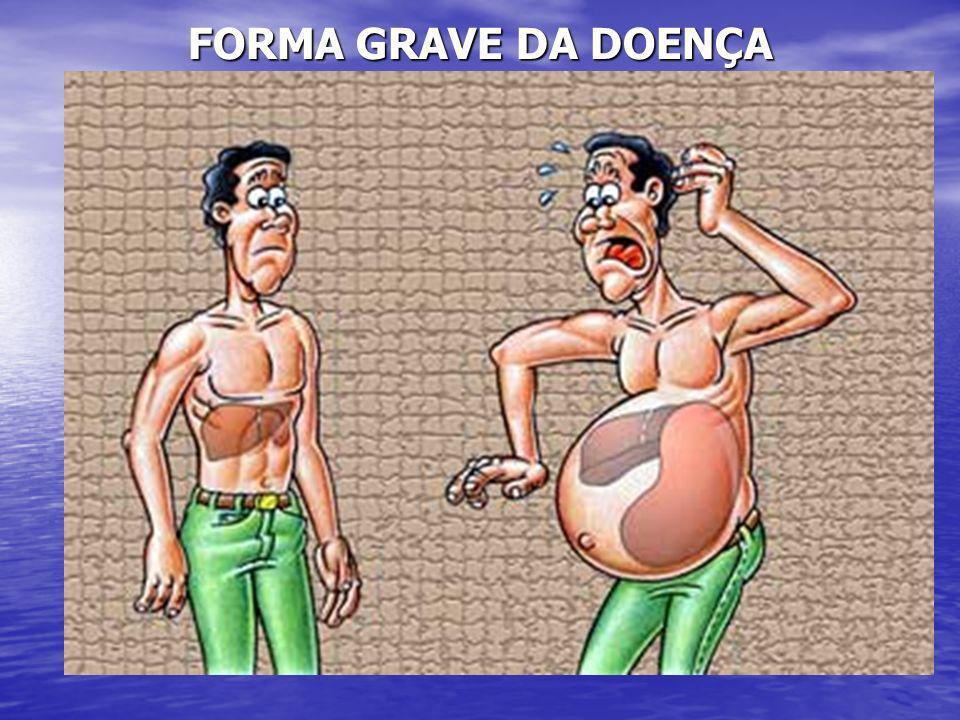 FORMA GRAVE DA DOENÇA
