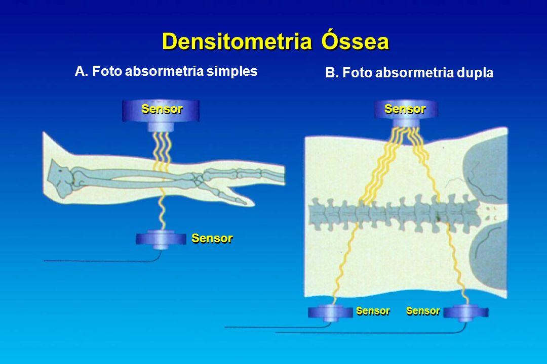 Densitometria Óssea A. Foto absormetria simples B. Foto absormetria dupla Sensor