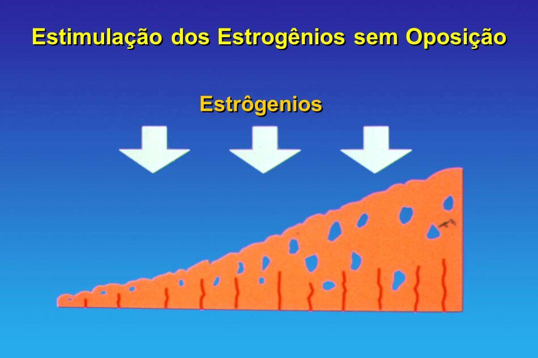 Estimulação dos Estrogênios sem Oposição Estrôgenios