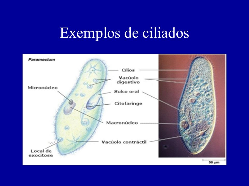 Exemplos de ciliados