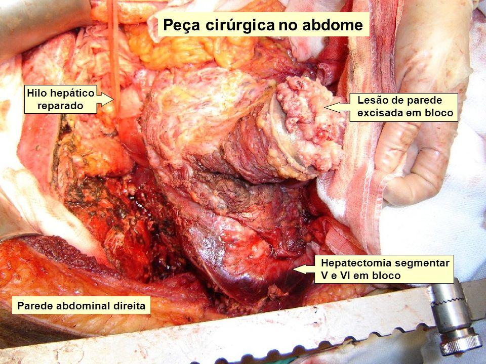 Peça cirúrgica no abdome Lesão de parede excisada em bloco Hepatectomia segmentar V e VI em bloco Hilo hepático reparado Parede abdominal direita