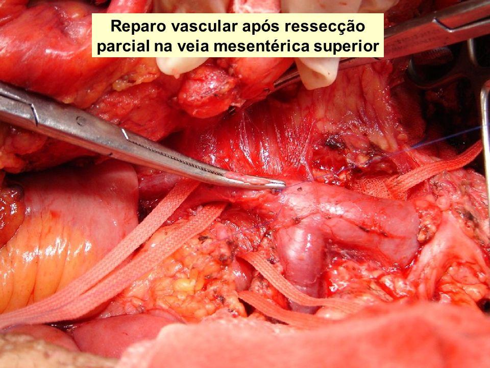 Reparo vascular após ressecção parcial na veia mesentérica superior