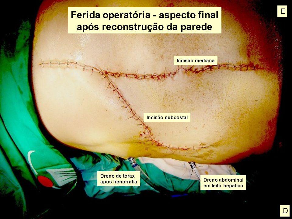 Ferida operatória - aspecto final após reconstrução da parede Dreno de tórax após frenorrafia Dreno abdominal em leito hepático Incisão mediana Incisã