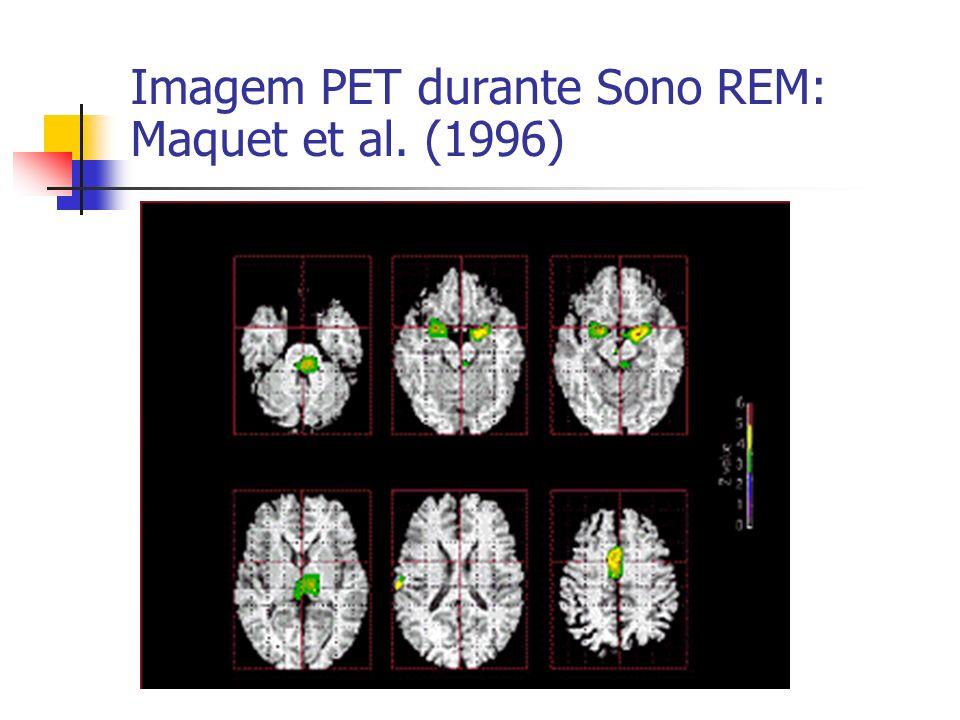 Imagem PET durante Sono REM: Maquet et al. (1996)