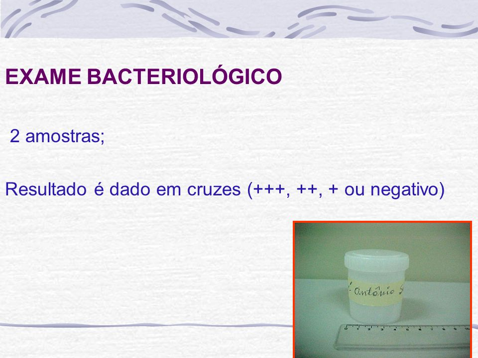 EXAME BACTERIOLÓGICO 2 amostras; Resultado é dado em cruzes (+++, ++, + ou negativo)