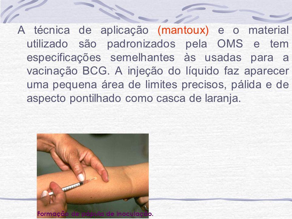 A técnica de aplicação (mantoux) e o material utilizado são padronizados pela OMS e tem especificações semelhantes às usadas para a vacinação BCG. A i
