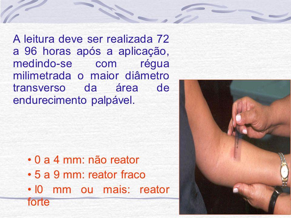 A leitura deve ser realizada 72 a 96 horas após a aplicação, medindo-se com régua milimetrada o maior diâmetro transverso da área de endurecimento pal