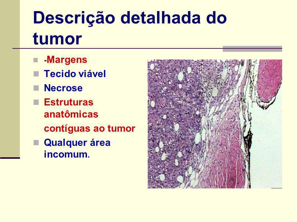 Descrição detalhada do tumor - Margens Tecido viável Necrose Estruturas anatômicas contíguas ao tumor Qualquer área incomum.