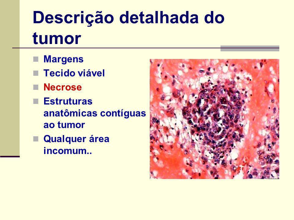 Descrição detalhada do tumor Margens Tecido viável Necrose Estruturas anatômicas contíguas ao tumor Qualquer área incomum..