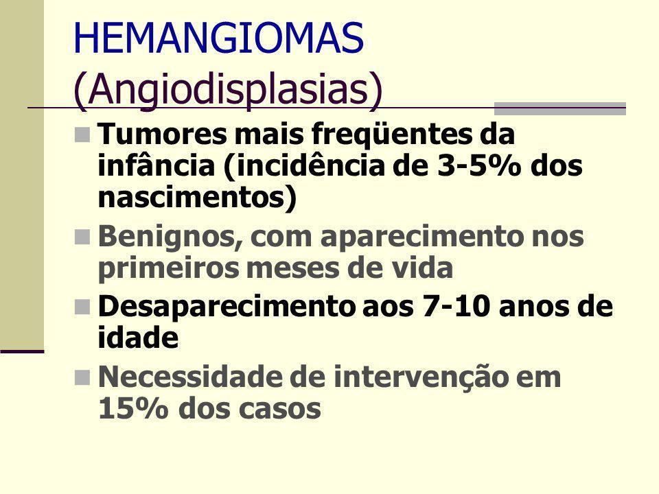 HEMANGIOMAS (Angiodisplasias) Tumores mais freqüentes da infância (incidência de 3-5% dos nascimentos) Benignos, com aparecimento nos primeiros meses de vida Desaparecimento aos 7-10 anos de idade Necessidade de intervenção em 15% dos casos