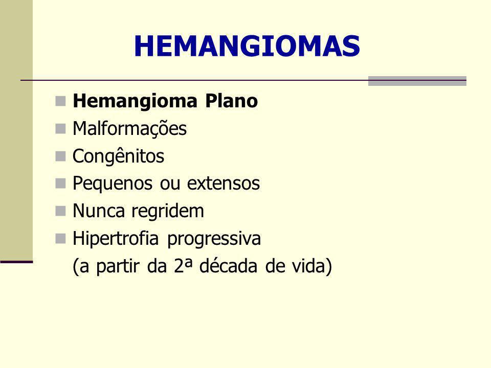 HEMANGIOMAS Hemangioma Plano Malformações Congênitos Pequenos ou extensos Nunca regridem Hipertrofia progressiva (a partir da 2ª década de vida)