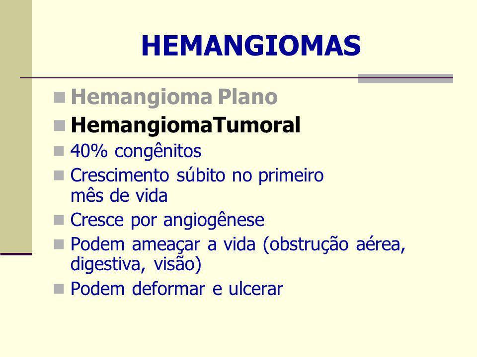 HEMANGIOMAS Hemangioma Plano HemangiomaTumoral 40% congênitos Crescimento súbito no primeiro mês de vida Cresce por angiogênese Podem ameaçar a vida (obstrução aérea, digestiva, visão) Podem deformar e ulcerar