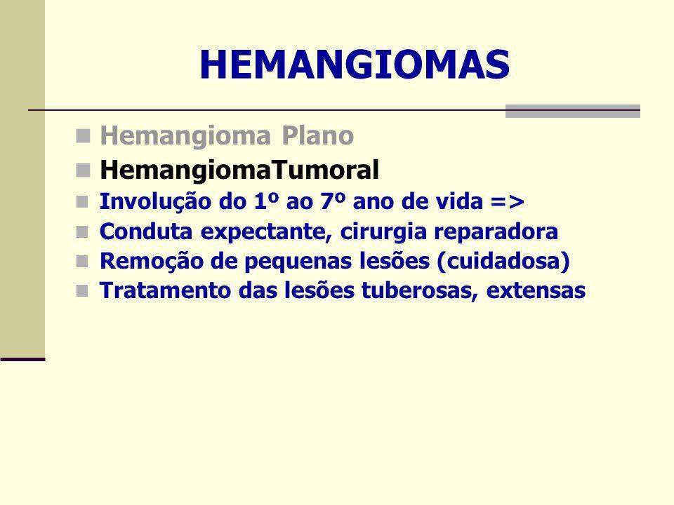 HEMANGIOMAS Hemangioma Plano HemangiomaTumoral Involução do 1º ao 7º ano de vida => Conduta expectante, cirurgia reparadora Remoção de pequenas lesões (cuidadosa) Tratamento das lesões tuberosas, extensas
