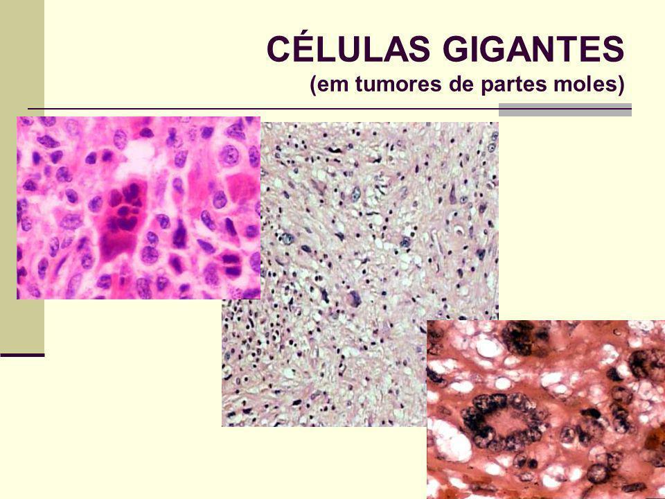CÉLULAS GIGANTES (em tumores de partes moles)