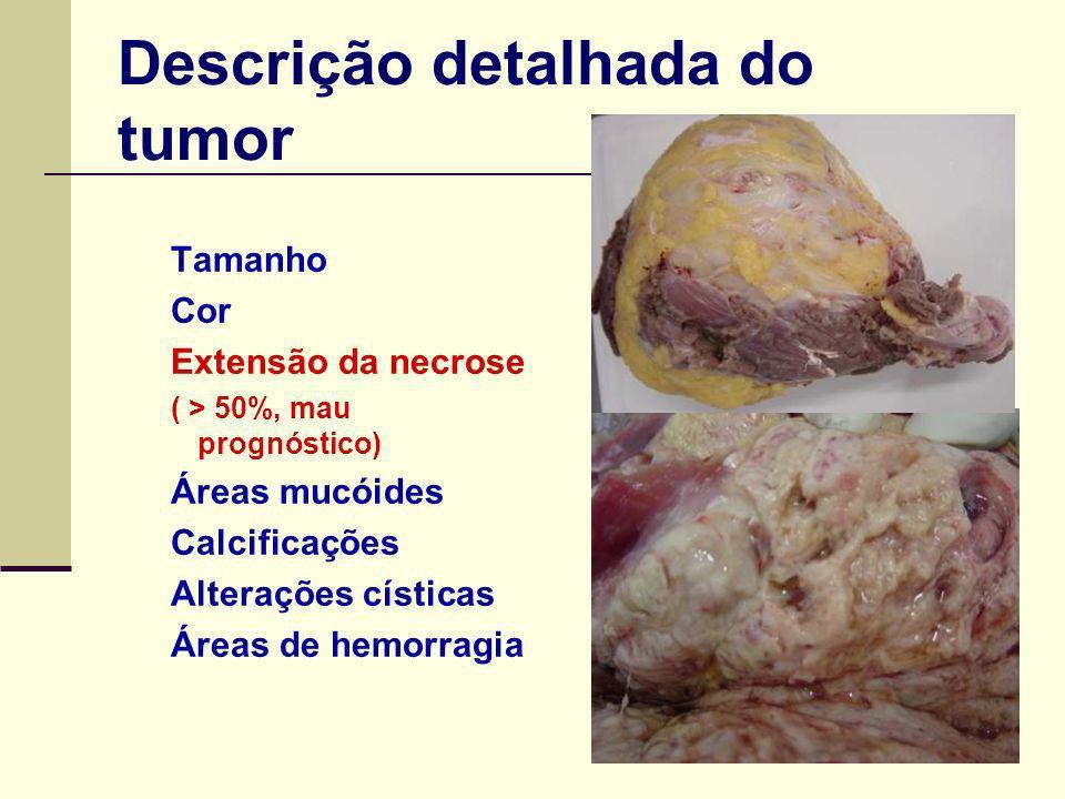 Descrição detalhada do tumor Tamanho Cor Extensão da necrose ( > 50%, mau prognóstico) Áreas mucóides Calcificações Alterações císticas Áreas de hemorragia