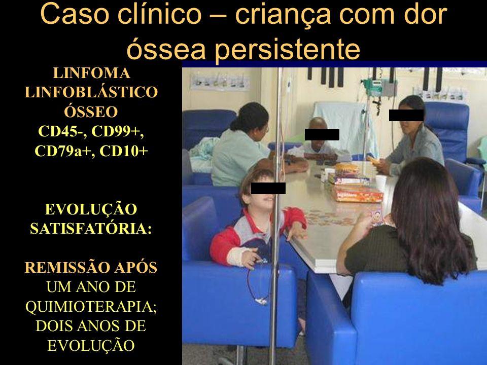 Caso clínico – criança com dor óssea persistente LINFOMA LINFOBLÁSTICO ÓSSEO CD45-, CD99+, CD79a+, CD10+ EVOLUÇÃO SATISFATÓRIA: REMISSÃO APÓS UM ANO D