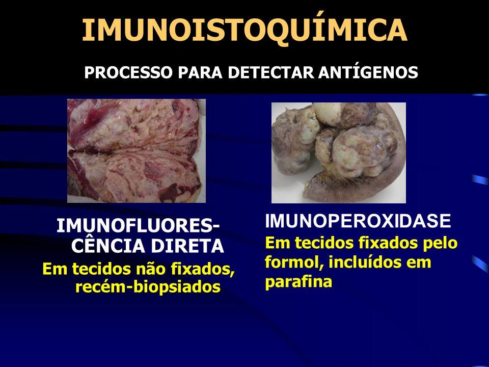 IMUNOISTOQUÍMICA IMUNOFLUORES- CÊNCIA DIRETA Em tecidos não fixados, recém-biopsiados IMUNOPEROXIDASE Em tecidos fixados pelo formol, incluídos em par
