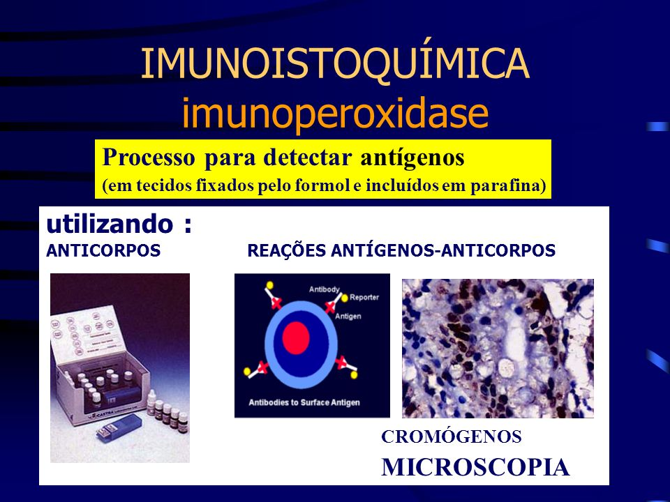 IMUNOISTOQUÍMICA imunoperoxidase Processo para detectar antígenos (em tecidos fixados pelo formol e incluídos em parafina) utilizando : ANTICORPOSREAÇ