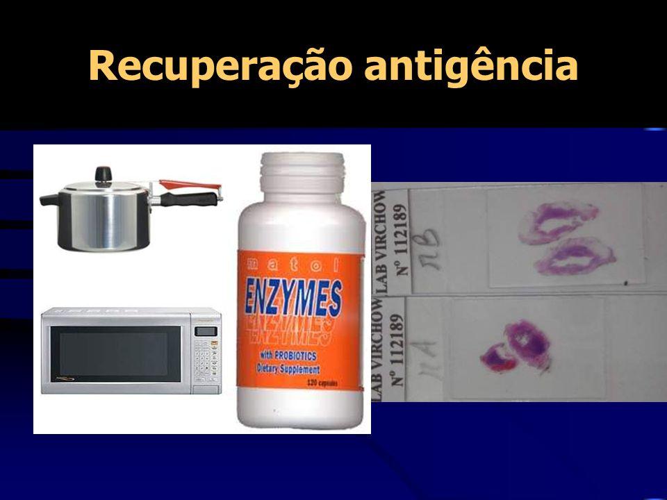 Recuperação antigência