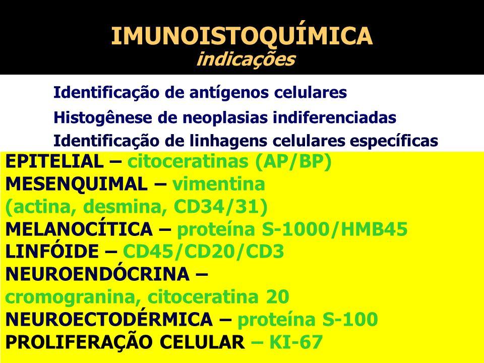 IMUNOISTOQUÍMICA indicações EPITELIAL – citoceratinas (AP/BP) MESENQUIMAL – vimentina (actina, desmina, CD34/31) MELANOCÍTICA – proteína S-1000/HMB45