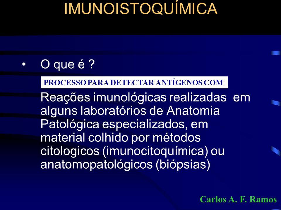 IMUNOISTOQUÍMICA imunoperoxidase Processo para detectar antígenos (mesmo em tecidos fixados pelo formol e incluídos em parafina) utilizando : ANTICORPOS REAÇÕES ANTÍGENO-ANTICORPOS CROMÓGENOS MICROSCOPIA