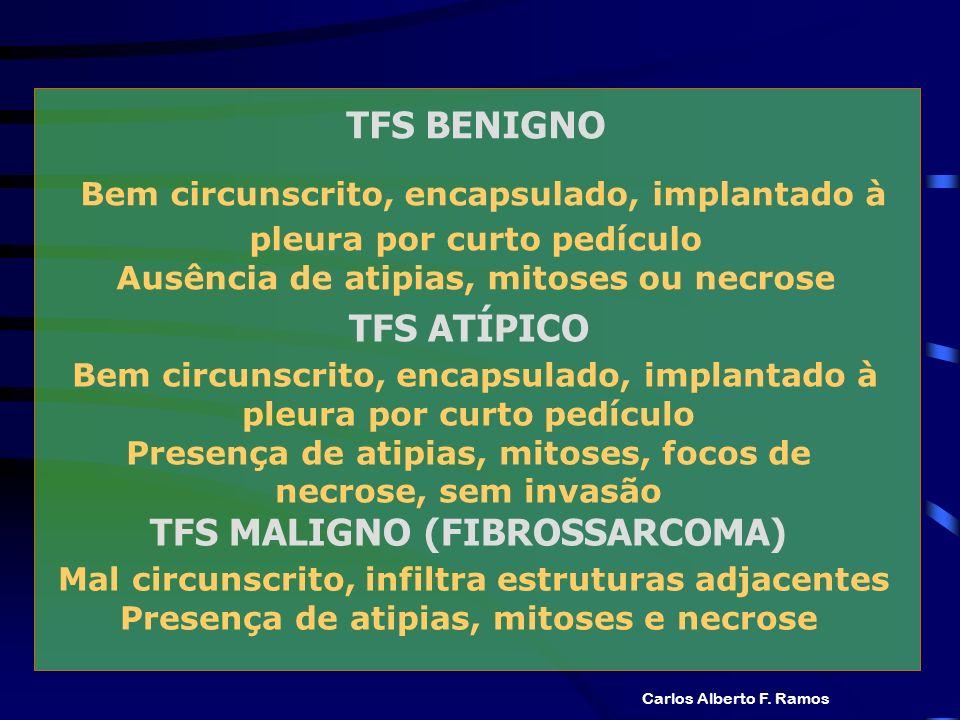 TFS BENIGNO Bem circunscrito, encapsulado, implantado à pleura por curto pedículo Ausência de atipias, mitoses ou necrose Carlos Alberto F. Ramos TFS