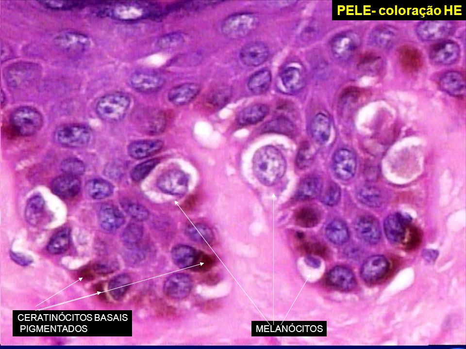 PELE – Imunoperoxidase PROTEINA S-100 CÉLULAS DE LANGERHANSMELANÓCITOS