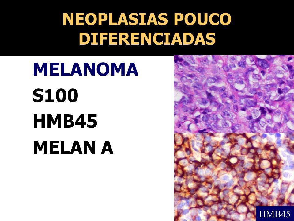NEOPLASIAS POUCO DIFERENCIADAS MELANOMA S100 HMB45 MELAN A HMB45