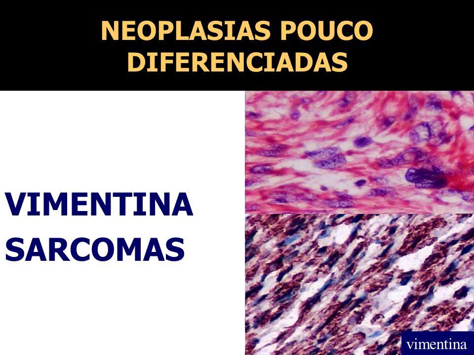 NEOPLASIAS POUCO DIFERENCIADAS VIMENTINA SARCOMAS vimentina
