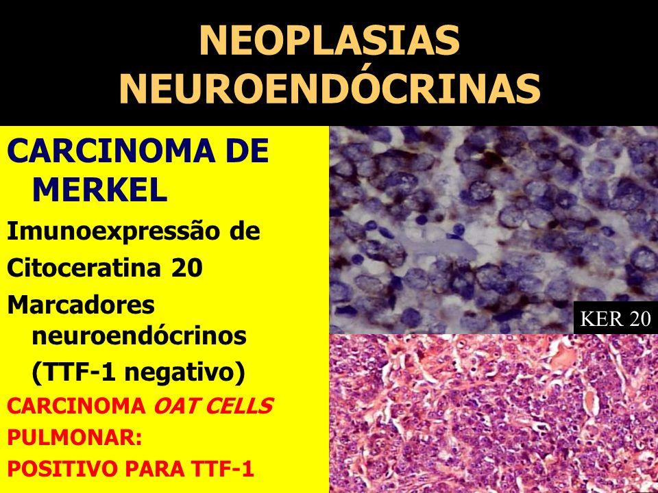 NEOPLASIAS NEUROENDÓCRINAS CARCINOMA DE MERKEL Imunoexpressão de Citoceratina 20 Marcadores neuroendócrinos (TTF-1 negativo) CARCINOMA OAT CELLS PULMO