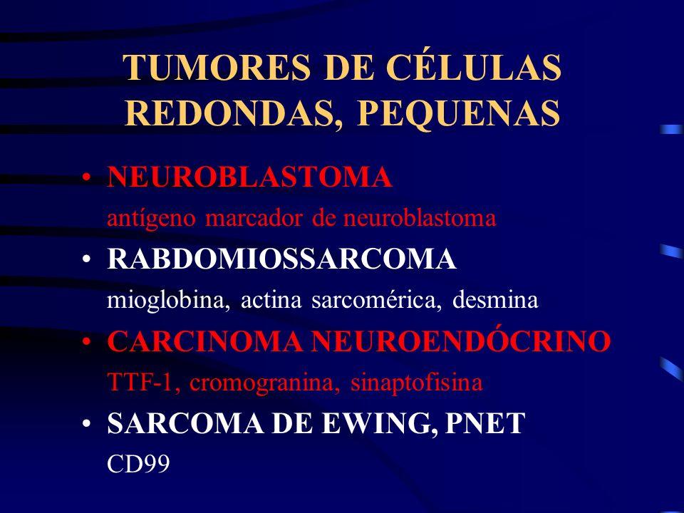 TUMORES DE CÉLULAS REDONDAS, PEQUENAS NEUROBLASTOMA antígeno marcador de neuroblastoma RABDOMIOSSARCOMA mioglobina, actina sarcomérica, desmina CARCIN
