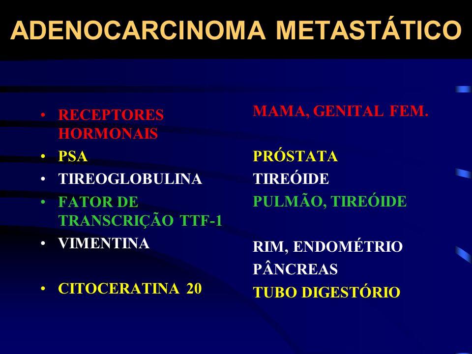 ADENOCARCINOMA METASTÁTICO RECEPTORES HORMONAIS PSA TIREOGLOBULINA FATOR DE TRANSCRIÇÃO TTF-1 VIMENTINA CITOCERATINA 20 MAMA, GENITAL FEM. PRÓSTATA TI