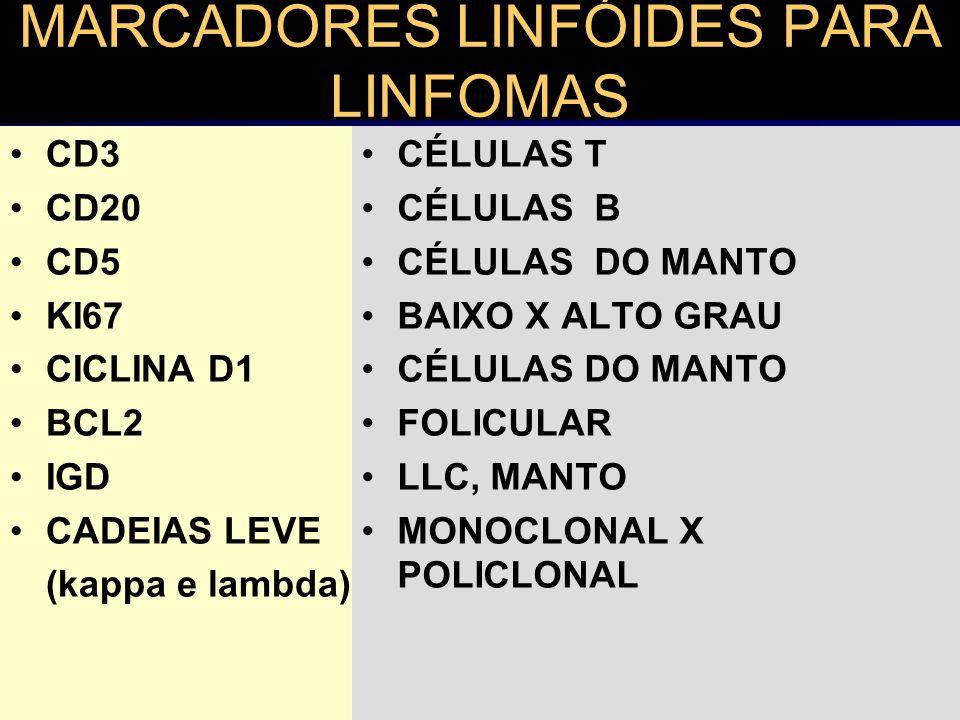 MARCADORES LINFÓIDES PARA LINFOMAS CD3 CD20 CD5 KI67 CICLINA D1 BCL2 IGD CADEIAS LEVE (kappa e lambda) CÉLULAS T CÉLULAS B CÉLULAS DO MANTO BAIXO X AL