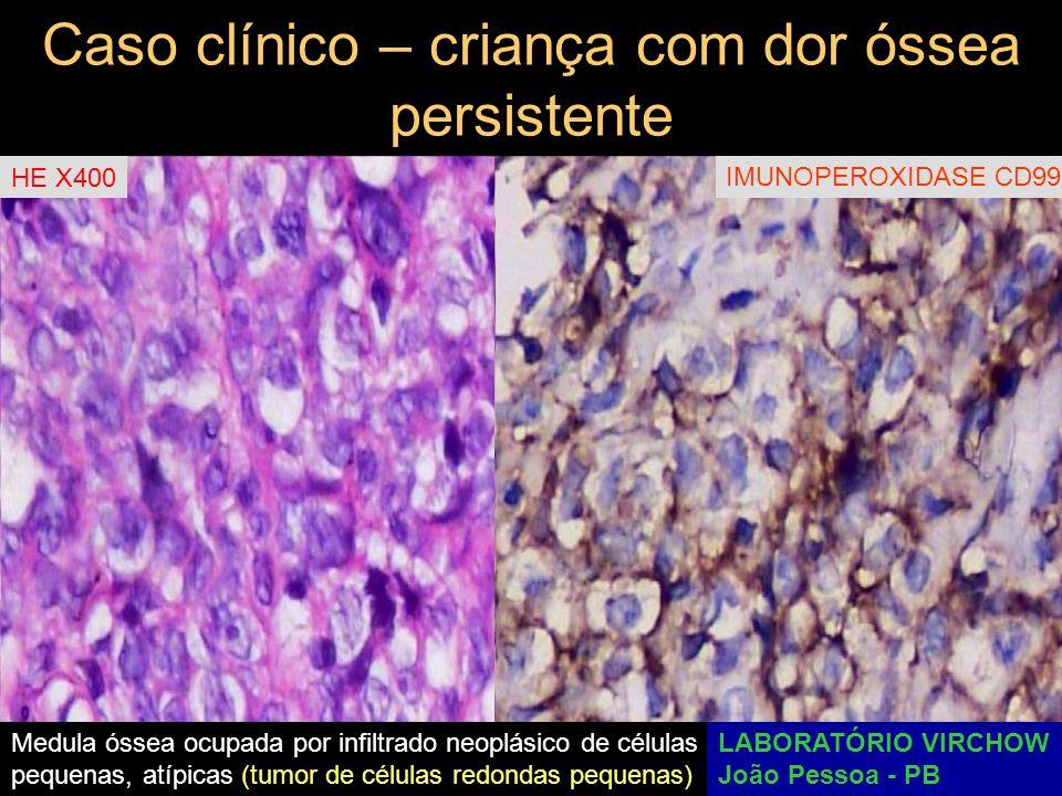 Caso clínico – criança com dor óssea persistente Imunorreações negativas para: CD45 (ALC, antígeno leucocitário comum) CD3 (para linfócitos B) CD20 (para linfócitos T) TdT (para linfoblastos) CD43 (para linfócitos B) CD45RO (para linfócitos T) DIAGNÓSTICOS DIFERENCIAIS: Neuroblastoma, Rabdomiossarcoma embrionário, Linfoma linfoblástico, Sarcoma de Ewing