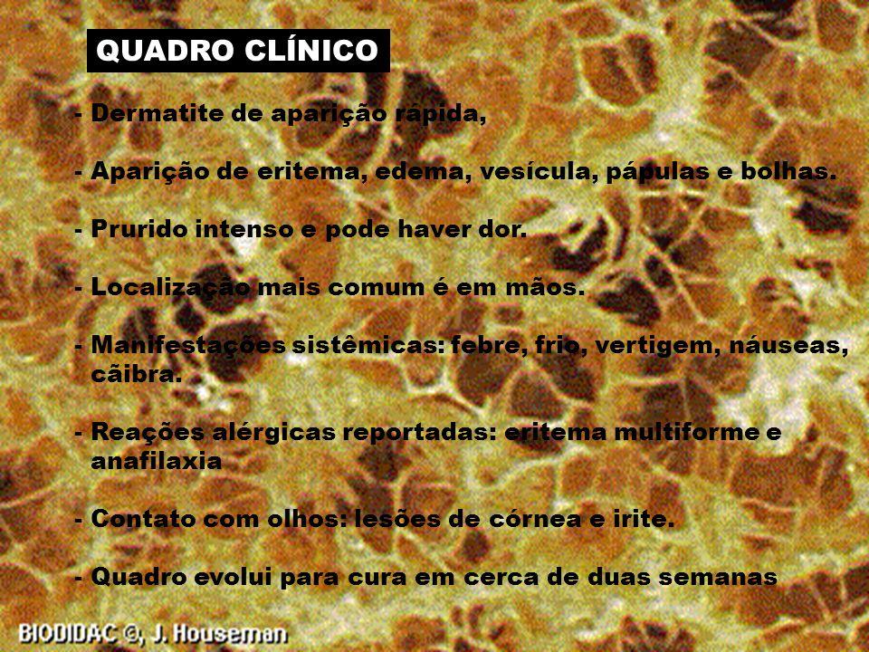COMPOSIÇÃO DO VENENO - Pouco conhecida - Presença de histaminas em esponjas do Pacífico AÇÃO DO VENENO - Irritante - Dermatite de padrão eczematoso no ponto de contato
